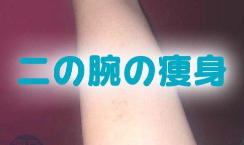 二の腕痩身ロゴ